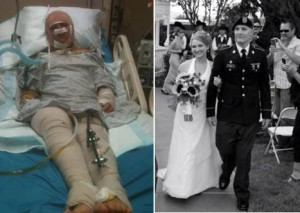 The cause was inspired by Zac Lutz, who was badly injured in a 2012 motorcycle crash. Zac pulled through and eventually made it down the aisle.